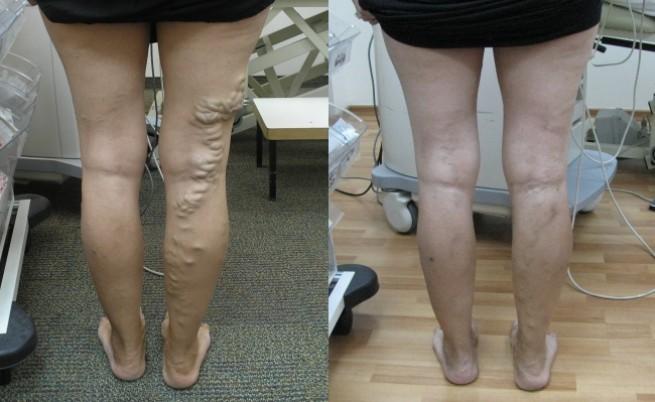 Преди и след лечение по метода, прилаган от д-р Галили