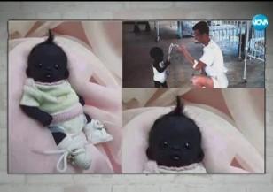 Роди се най-тъмното бебе в света