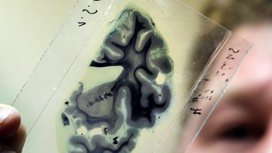 Австралийски учени ще създават бионичен мозък