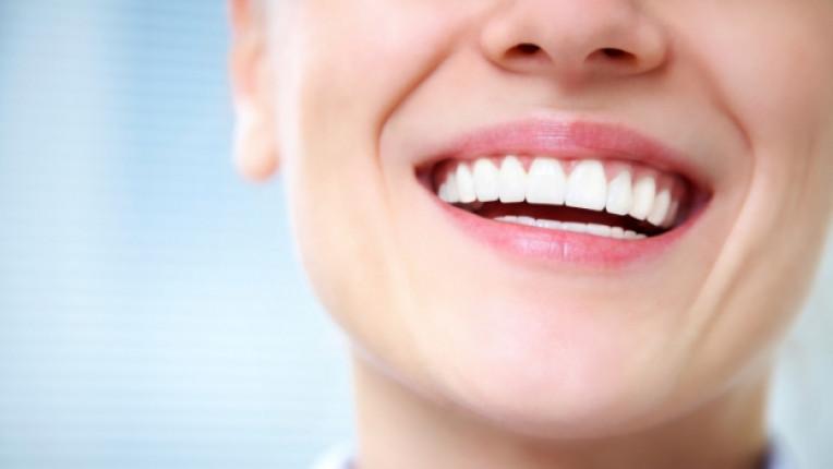 усмивка зъболекар стоматолог зъби