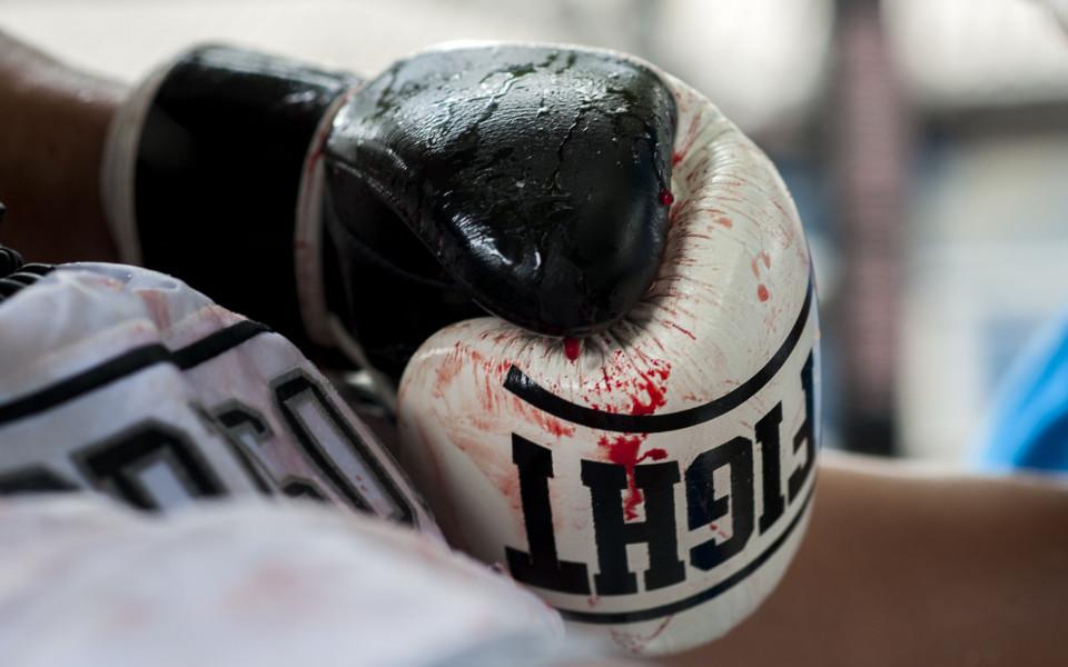 Снимка: Боксьор почина след мач