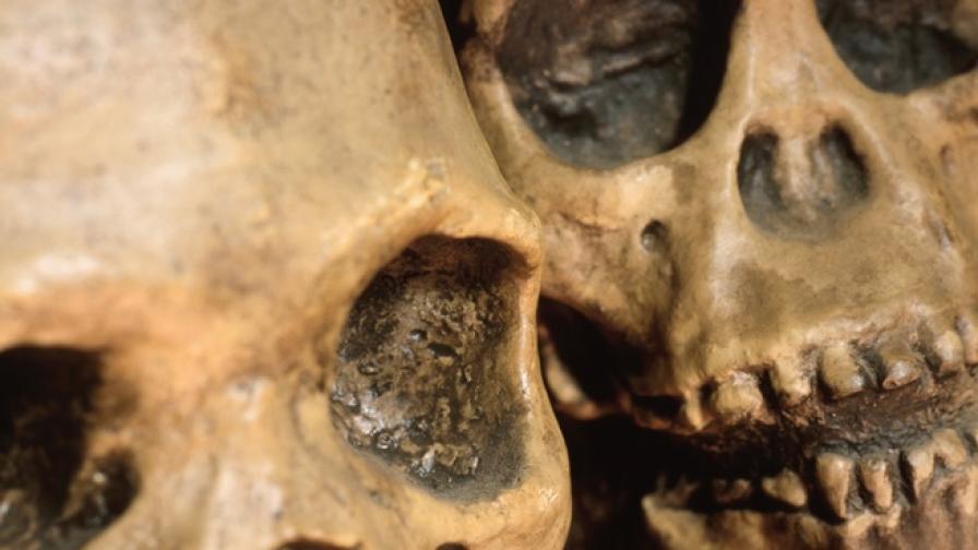 Защо зъбите на пещерния човек са по-здрави от нашите