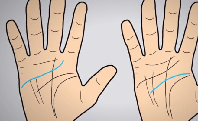 Какво значи, ако имате редкия Х на дланта си