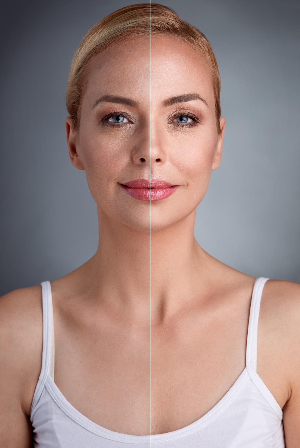 2. Забавя стареенето - до това заключение достигат холандски учени.При 87% от жените на възраст от 35 до 40 г. старческите петна изчезнали, а кожата станала по-стегната. При мъжете бръчките около очите се изгладили.
