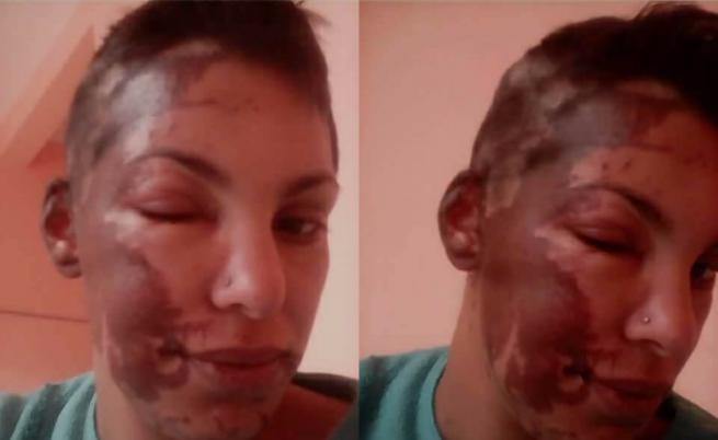 Киселина, бой, тормоз: колко е страшно в България (ВИДЕО)