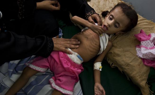 Децата в Йемен са подложени на системен глад