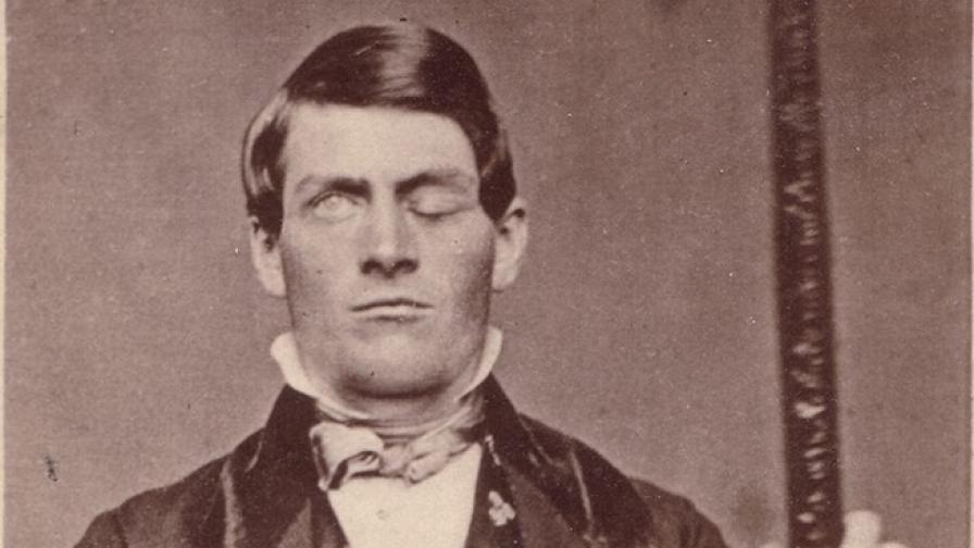 Финиъс Гейдж и металният лост, пробол черепа му.