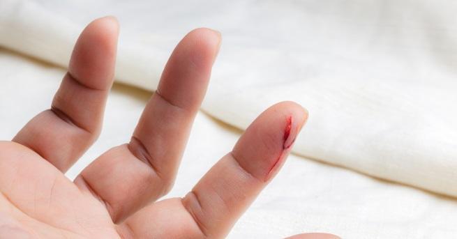 Учени установиха причината, поради коятопорязването на пръст на ръката с