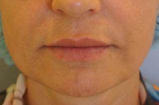 """Снимка """"след"""" - с филър на основата на хиалуронова киселина е направена корекция в средна и долна трета на лицето"""