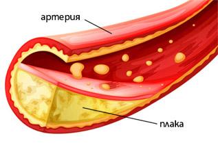 Холестеролът се натрупва в кръвоносните съдове под формата на плаки