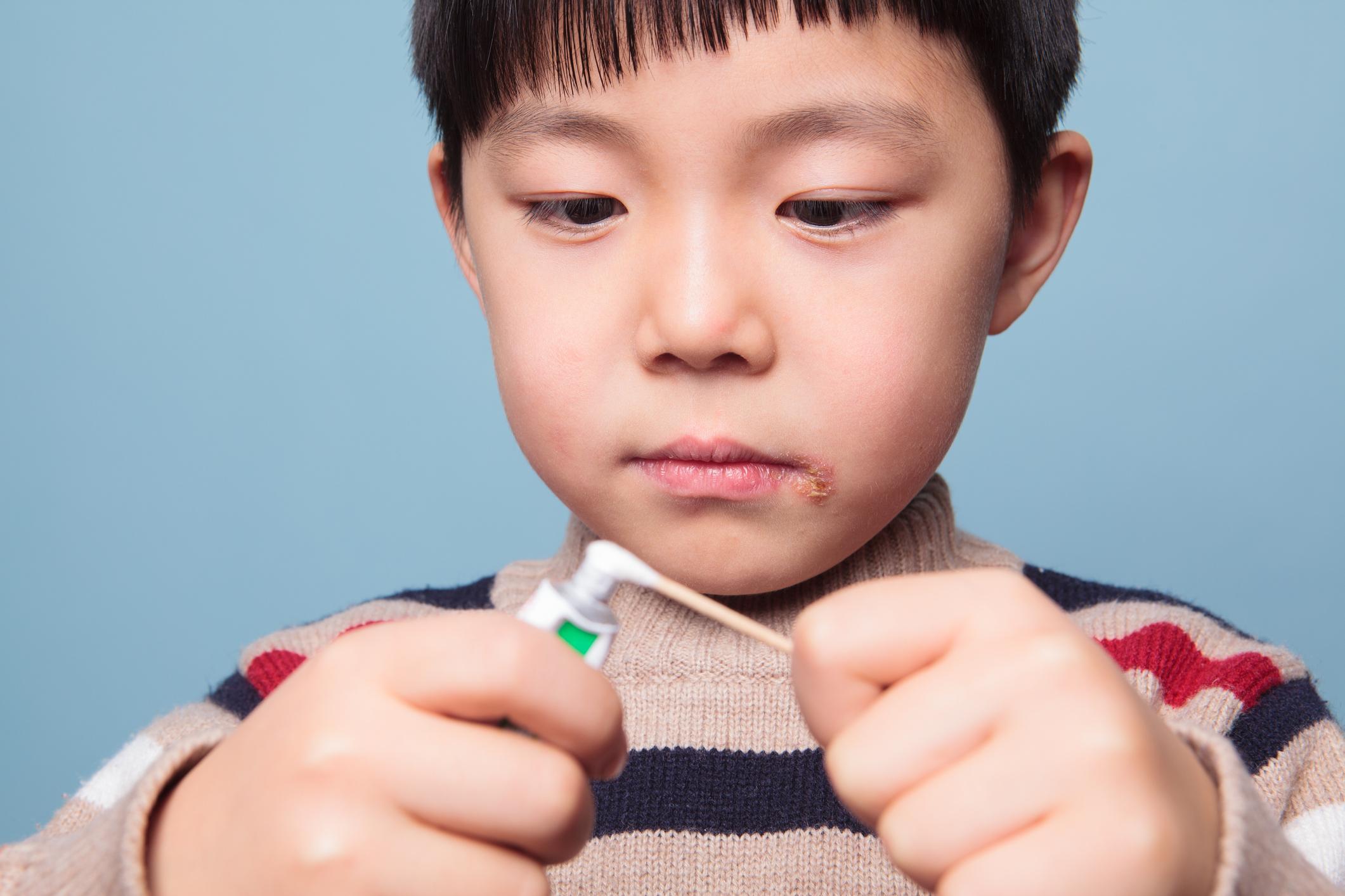 Херпеси<br /> Херпеси на устните могат да издават недостиг на витамин B12. Той се съдържа в животински продукти като червено месо, кокоше месо, яйца, а също и в соевото мляко, пълнозърнестите закуски и маята. Въпреки това също като всички други симптоми, изредени в галерията, причинителят може да бъде и друг, затова ако симптомите не изчезват, въпреки че приемате достатъчно витамини, консултирайте се с лекар.