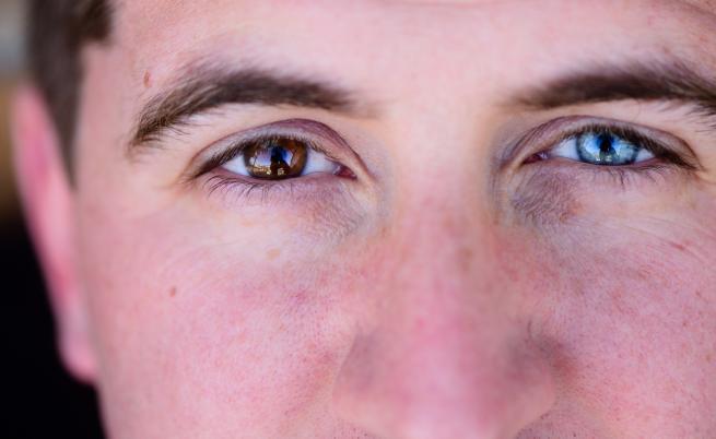 Защо очите на някои хора са с различен цвят?