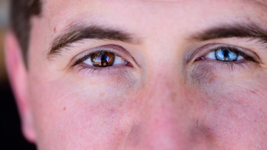 <p>Защо очите на някои хора са с <strong>различен цвят?</strong></p>