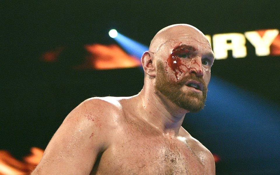 Победата на бившия шампион в тежка категория Тайсън Фюри имаше