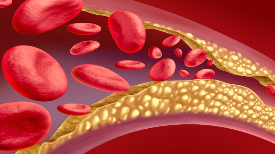 Как лекарите си свалят холестерола