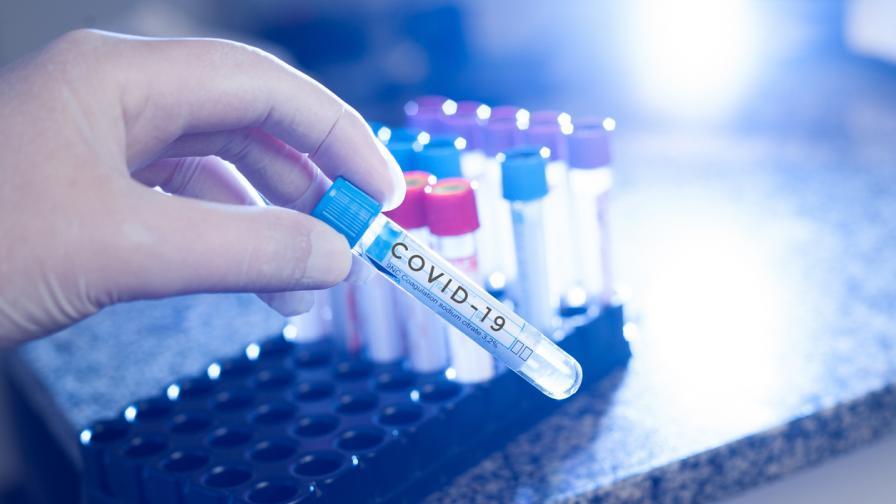 160 нови случаи на COVID-19, 12 души са починали