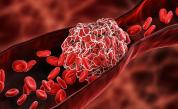 Кръвен съсирек след ваксина – какви са симптомите