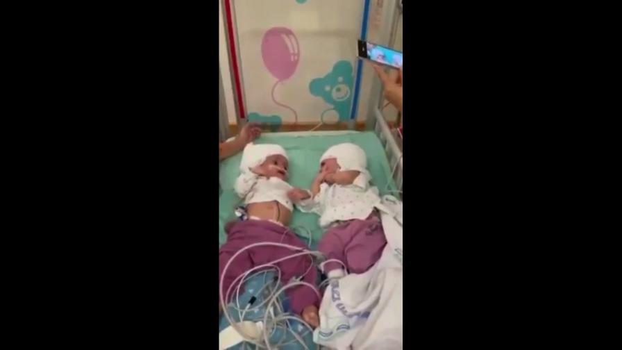 <p>Чудо: разделиха сиамски близнаци, свързани в главата</p>