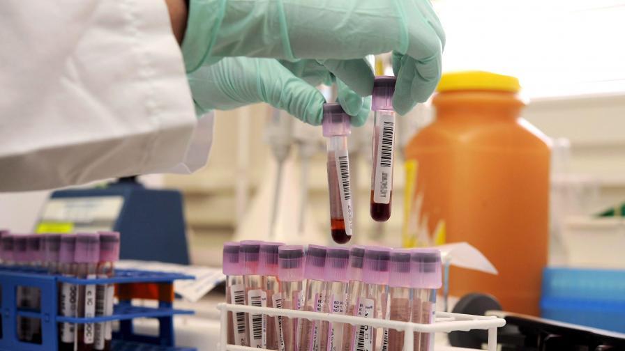 По-голям риск от инсулт за кръвните групи B и AB