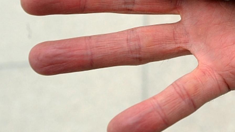 Насекомо, което може да ви отхапе пръста