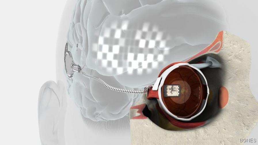 Хора проглеждат с бионично око